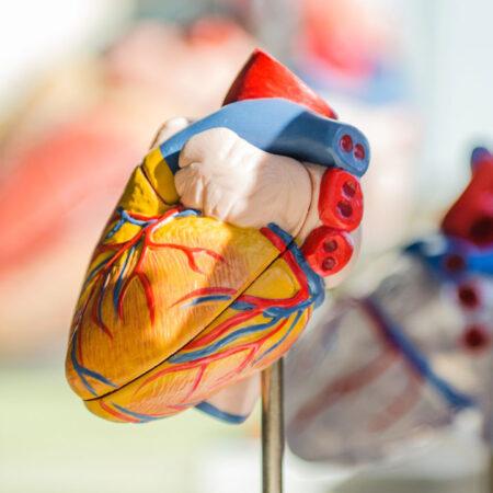 Kardiomiopatia rozstrzeniowa – ICD w prewencji pierwotnej SCD: trudne decyzje